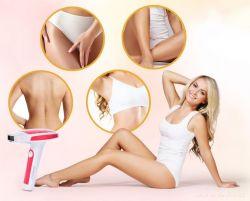 SYSTEMAT IPL VELVET epilátor odstraňovač chĺpkov (ružový)